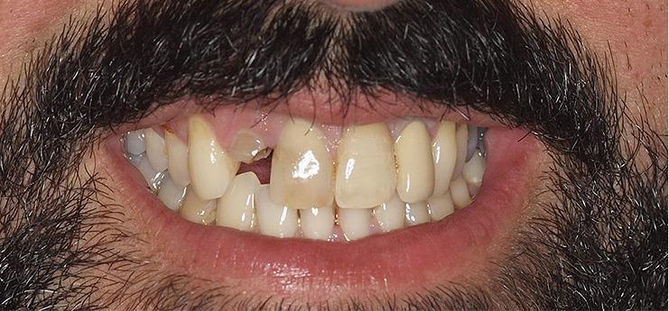 Antes dental