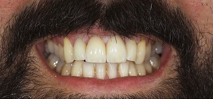Depois dental