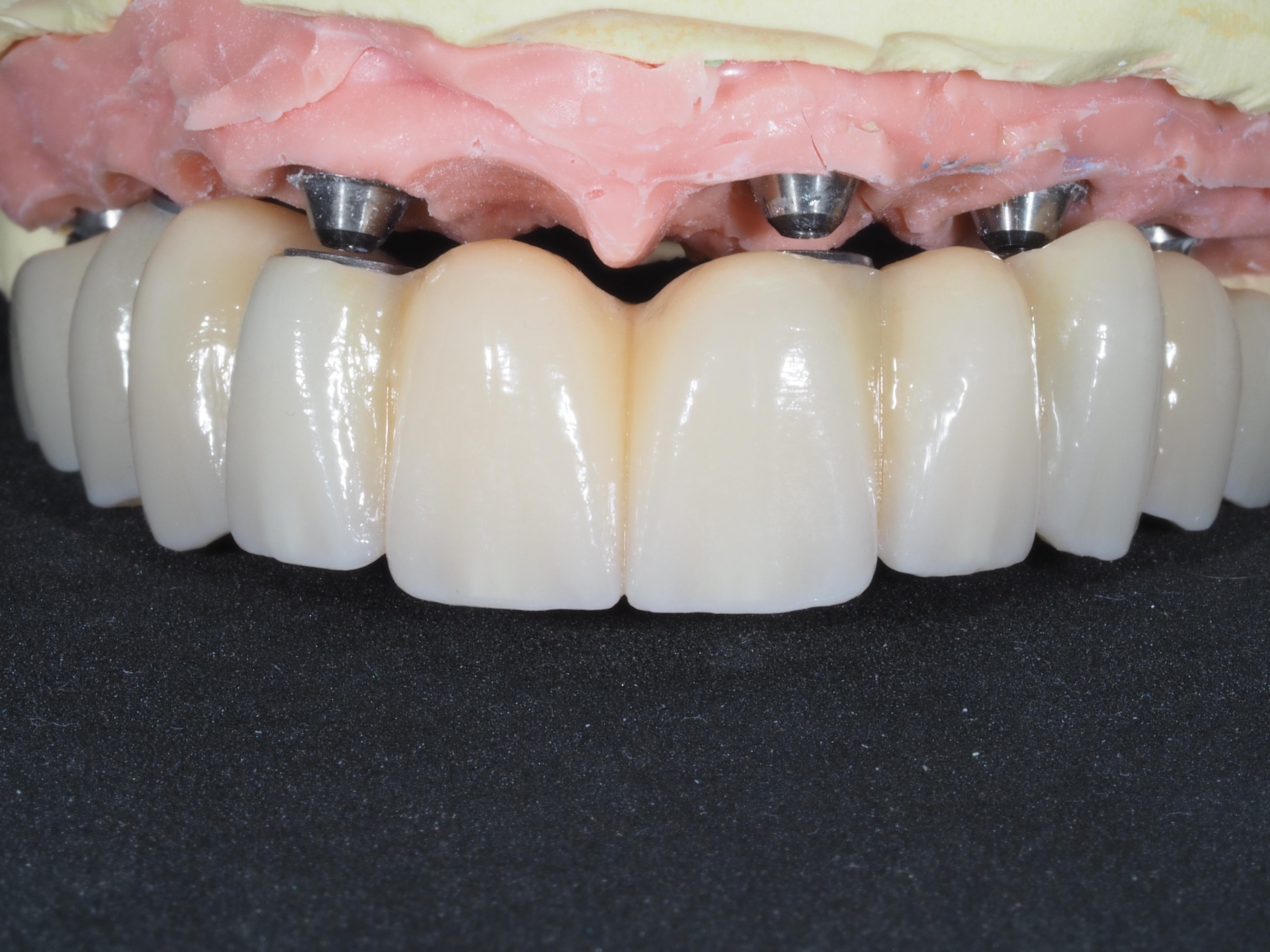 O que é a reabilitação oral?